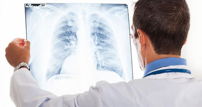 Göğüs Hastalıkları Nelerdir?